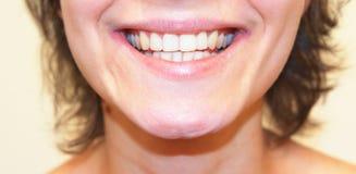 tät flicka som ler upp Sunda vita tänder stänger sig upp Arkivfoton
