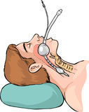 Técnica de la intubación tubárica Fotografía de archivo