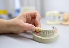 Técnico dental Working Imágenes de archivo libres de regalías
