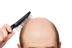 Tête chauve d'homme Photo stock