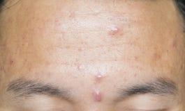 Tête d'acné sur le front image stock