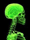 Tête de rayon X avec le cerveau Photographie stock