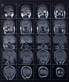 Tête et cerveau de rayon X Images stock