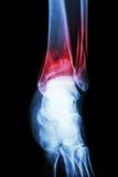 tíbia da fratura da mostra do tornozelo do raio X e perônio longe do ponto de origem (o osso do pé) Fotos de Stock