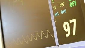 Tętno monitory W operacja pokoju Pokazuje bicie serca izbie pogotowia I zdjęcie wideo