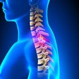 T1 Disc - Thoracic Spine Anatomy Stock Photos