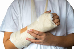 stock image of  broken arm