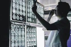 stock image of  dementia brain on mri