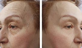 stock image of  face of an elderly woman wrinkles dermatology procedure before and aftetherapy r