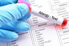 stock image of  food allergy test