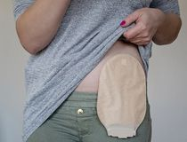 stock image of  front view on colostomy pouch in skin color attached to young woman patient. close-up on ostomy bag after surgery