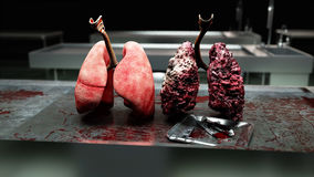 stock image of  healthy lungs and disease lungs on morgue table. autopsy medical concept. cancer and smoking problem.