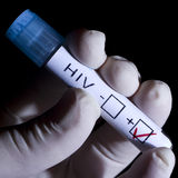 stock image of  hiv positive
