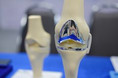 stock image of  knee joint model after replacement surgery