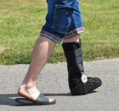 stock image of  man with broken leg
