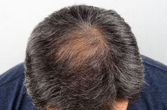 stock image of  man with hair loss and grey hair.