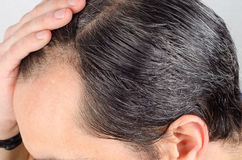 stock image of  man hair loss problem