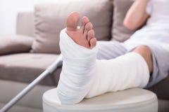 stock image of  man`s plastered leg