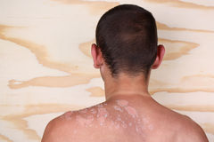 stock image of  man with a sunburn
