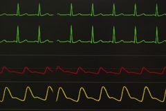 stock image of  monitoring displays of patient vital signs