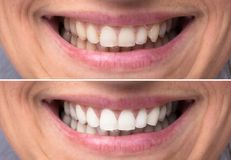 stock image of  person teeth before and after whitening