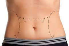 stock image of  plastic surgery