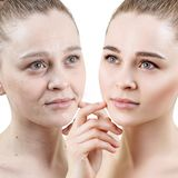 stock image of  portrait of woman before and after skin rejuvenation.