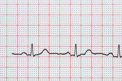 stock image of  sinus heart rhythm on electrocardiogram record paper showing normal heart