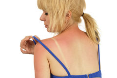 stock image of  sunburn