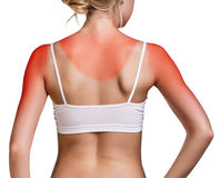stock image of  sunburn female shoulder