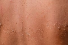 stock image of  sunburn on the skin of the back. exfoliation, skin peels off. dangerous sun tan