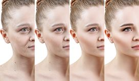 stock image of  woman with phase of skin rejuvenation before and after treatment.