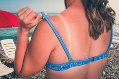 stock image of  woman with red sunburned shoulder - sunburn concept