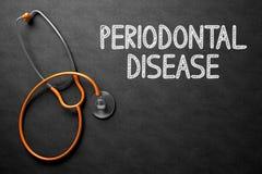 Tableau avec la maladie parodontale illustration 3D Images stock