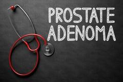 Tableau avec le concept d'adénome de prostate illustration 3D Photo stock