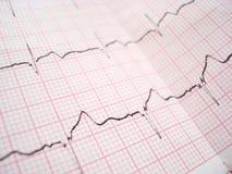Tableau d'électrocardiographie d'ECG Image stock