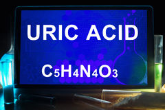 Tablet with chemical formula of  uric acid. Royalty Free Stock Images