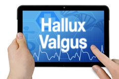 Tablet computer with diagnonsis hallux valgus royalty free stock photo