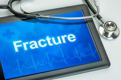 Tablet with the diagnosis Fracture Royalty Free Stock Images
