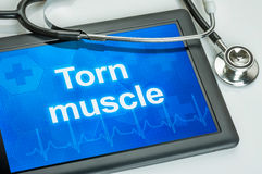 Tablet with the diagnosis Torn muscle royalty free stock photos