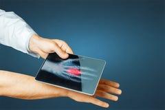 Tablet Doktor-Hand With Digital scannt geduldige Hand, moderne Röntgentechnik in der Medizin und Gesundheitswesen-Konzept Lizenzfreie Stockfotografie