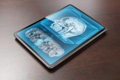 Brain scan royalty free stock photo