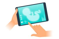 Tablet PC with ultrasound virtual image of unborn baby. Stock Image