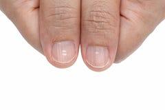 Taches blanches et arêtes verticales sur les ongles images stock