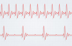 Tachycardia and Bradycardia. Difference of heart pulsating rapid and slow rhythm Stock Photos