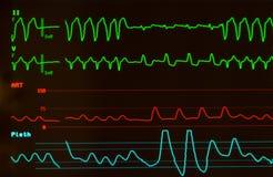 Tachycardie ventriculaire sur le moniteur Image libre de droits