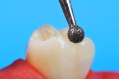 Taladro y diente dentales Fotografía de archivo