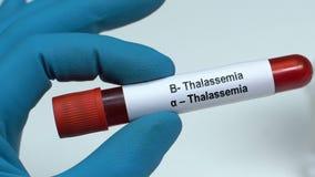 Talasemia, doctor que sostiene la muestra de sangre en el primer del tubo, chequeo de salud almacen de video