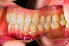 tand- anatomi Arkivbild