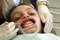 tand- behandling royaltyfri fotografi